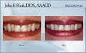 case 9 - restorative dentistry before and after photo - porcelain dental veneers