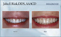 case 11 - restorative dentistry before and after photo - porcelain dental veneers