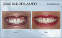 case 12 - restorative dentistry before and after photo - porcelain dental veneers