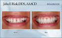 case 13 - restorative dentistry before and after photo - porcelain dental veneers