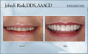 case 14 - restorative dentistry before and after photo - porcelain dental veneers